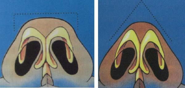 """4 lý do tạo """"cơn sốt"""" thu nhỏ cánh mũi phương pháp nội soi 2"""