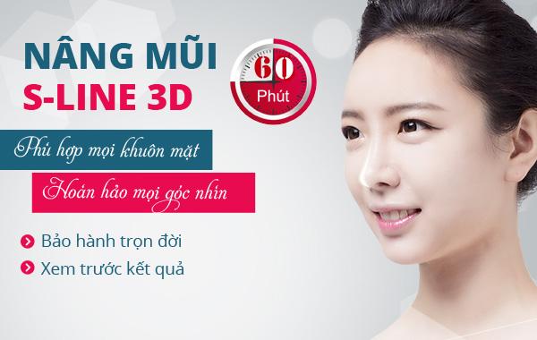 Phẫu thuật nâng mũi s line 3D tại mũi đẹp bảo hành vĩnh viễn