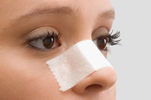Có cách nâng mũi cao đẹp tự nhiên - Chuyện thật hay mơ? 1