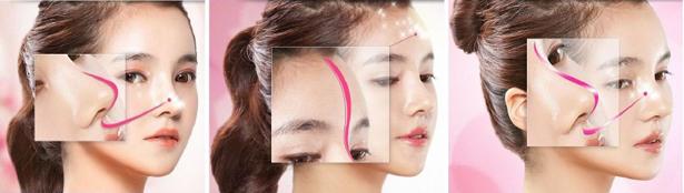 Có cách nâng mũi cao đẹp tự nhiên - Chuyện thật hay mơ? 2