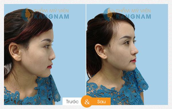 Kết quả thẩm mỹ nâng mũi tại Kangnam 11