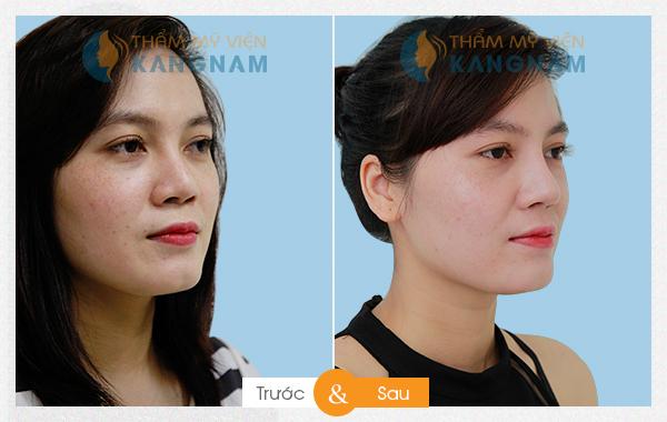 Kết quả thẩm mỹ nâng mũi tại Kangnam 33