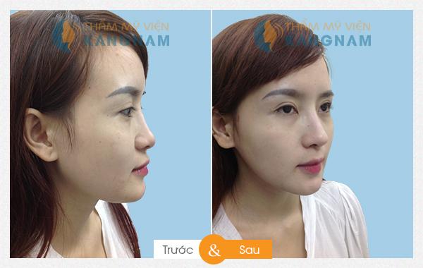 Kết quả thẩm mỹ nâng mũi tại Kangnam 55