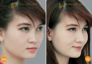 Nâng mũi S-line 3D là gì mà được nhiều người lựa chọn? 7