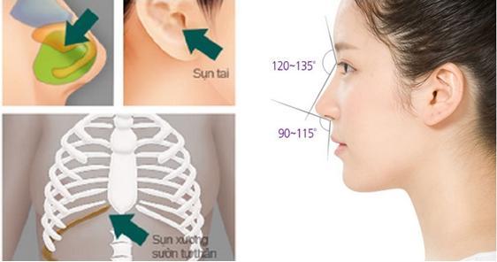 Bật mí cách làm mũi cao thon tự nhiên vĩnh viễn 2
