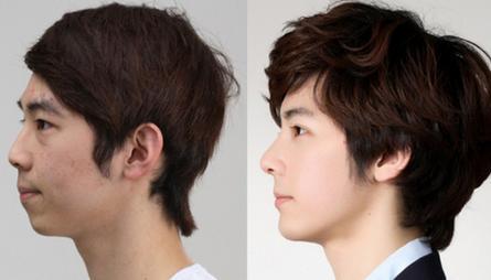 Phẫu thuật nâng mũi cho nam giới an toàn 2