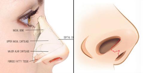 Làm cách nào để mũi cao thanh tú đẹp tự nhiên? 5