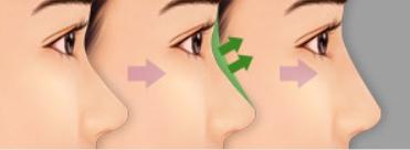 Làm cách nào để mũi cao thanh tú đẹp tự nhiên? 4