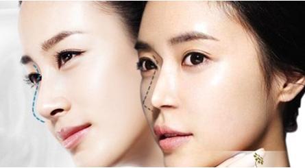 Nâng mũi Hàn Quốc cho dáng mũi cao thanh tú đẹp tự nhiên