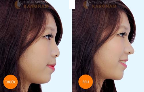Phẫu thuật nâng mũi S-line 3D 7