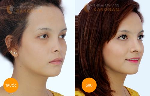 Phẫu thuật nâng mũi S-line 3D 8