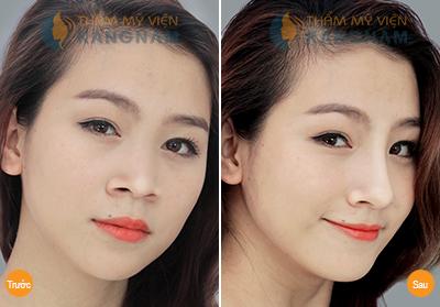 Phẫu thuật nâng mũi S-line 3D 9