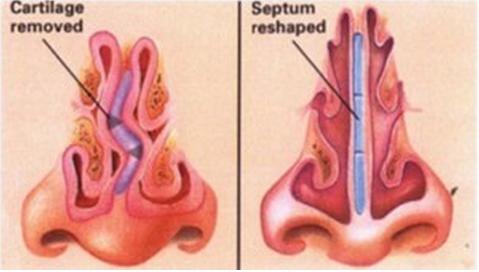 Mũi bị vẹo do bẩm sinh hoặc do nâng mũi bị lệch