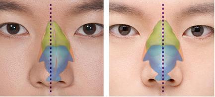 Phẫu thuật sửa mũi bị lệch, mũi vẹo khắc phục mũi bị vẹo sang một bên