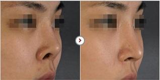 Phẫu thuật chỉnh sửa mũi hếch CAM KẾT an toàn, mũi đẹp tự nhiên 6