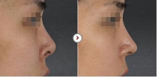 Phẫu thuật chỉnh sửa mũi hếch CAM KẾT an toàn, mũi đẹp tự nhiên 8