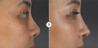 Phẫu thuật chỉnh sửa mũi hếch CAM KẾT an toàn, mũi đẹp tự nhiên 9