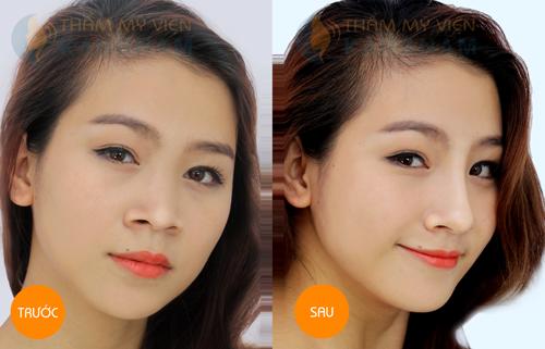 Tất tần tật về phương pháp thu gọn cánh mũi nội soi 6