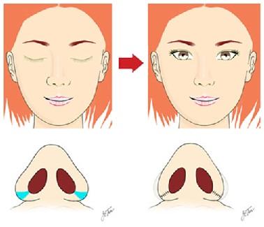 Tất tần tật về phương pháp thu gọn cánh mũi nội soi 2
