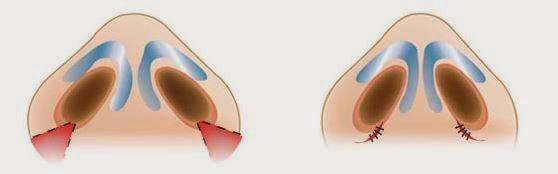Phẫu thuật thu gọn cánh mũi nội soi an toàn không đau không để lại sẹo