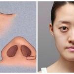 Thu nhỏ cánh mũi nội soi tạo sự thay đổi đến kinh ngạc