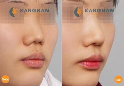 chi phí phẫu thuật thu gọn cánh mũi tại kangnam