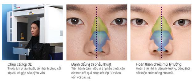 Nâng mũi có thay đổi được tướng số, vận mệnh? 4
