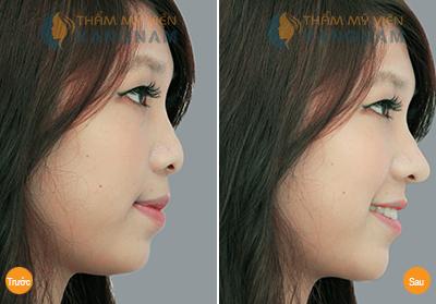 Nâng mũi có thay đổi được tướng số, vận mệnh? 5