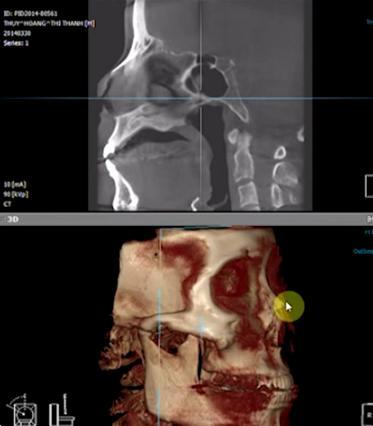 Khách hàng được chụp và tạo hình dáng mũi với phần mềm 3D