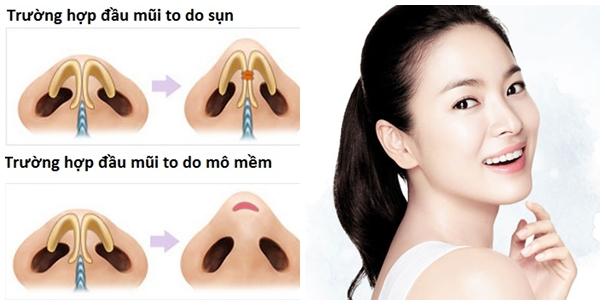 Giải pháp hoàn hảo khắc phục nhược điểm đầu mũi to 2