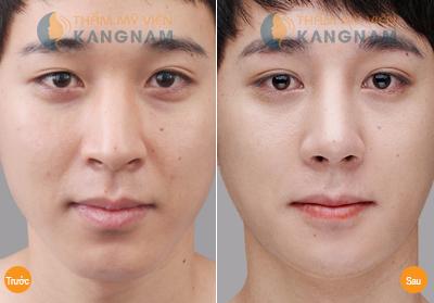 Giải pháp hoàn hảo khắc phục nhược điểm đầu mũi to 4