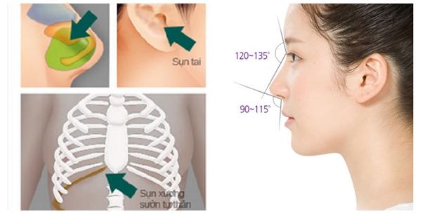 Nâng mũi bằng sụn nhân tạo và sụn tự thân: Nên chọn giải pháp nào? 3