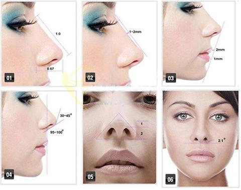 Nâng mũi S line 3D - Thủ thuật tạo ấn tượng cho gương mặt 4