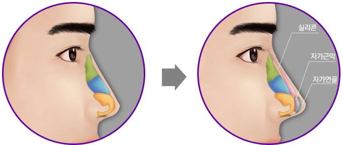 Thẩm mỹ mũi - Con đường ngắn nhất cho vẻ đẹp hoàn hảo của phái mạnh 2