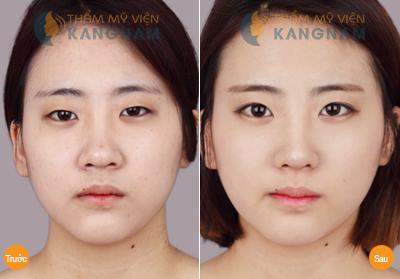 vi sao phai thuc hien thu nho dau mui 3 Phẫu thuật nâng mũi có ảnh hưởng tới tướng số không?