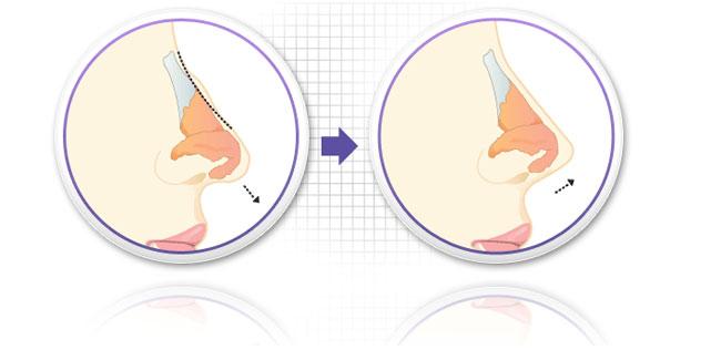 Cải thiện mũi gồ bằng cách nào hiệu quả? 3