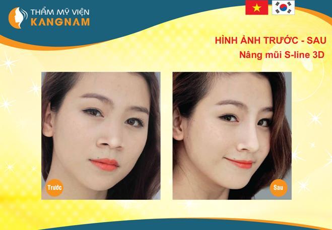 top-3-cong-nghe-dan-dau-xu-the-tham-my-2015-122