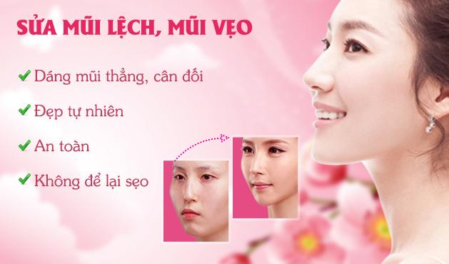 Sửa mũi vẹo do vách ngăn bị lệch có khó không? 2