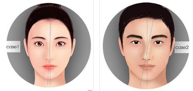 """""""Biến hóa"""" dáng mũi vẹo lệch trở nên cân đối và cao thẳng hơn 2"""