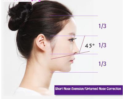 Phẫu thuật kéo dài đầu mũi an toàn không