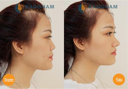 """Phẫu thuật kéo dài đầu mũi cho dáng mũi """"chuẩn không cần chỉnh"""" 4"""