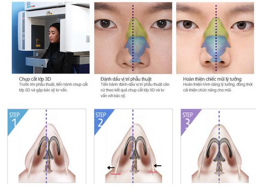 Nâng mũi S-line 3D tạo nét đẹp hiện đại cho gương mặt 4
