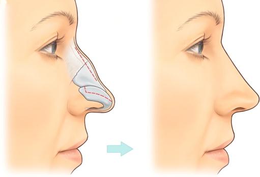 Mô phỏng dáng mũi sau phẫu thuật chỉnh sửa mũi quặp