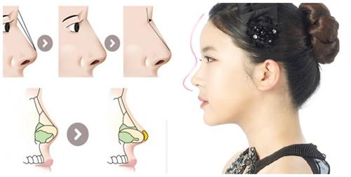 Người phương Đông và phương Tây quan niệm thế nào về dáng mũi đẹp? 3