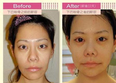 Biến chứng nào có thể gặp phải sau nâng mũi và cách khắc phục? 2