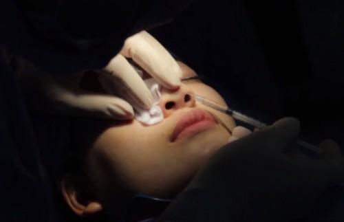Phẫu thuật làm lại mũi có đau không?