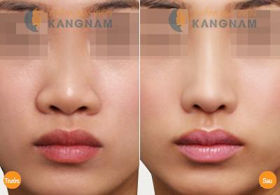 Phẫu thuật sửa cánh mũi to có phức tạp không? 3