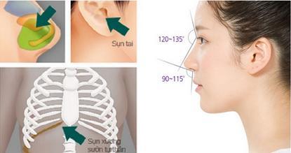 Tất tần tật những điều bạn nên biết về sửa mũi bằng sụn tự thân 2