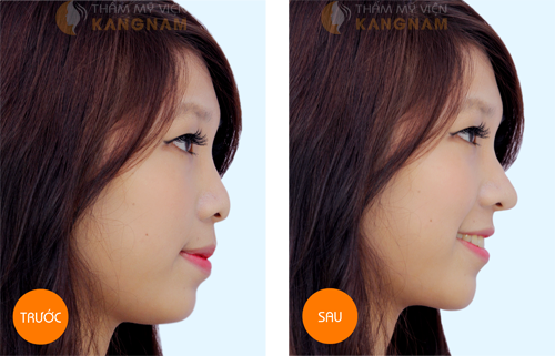 Tất tần tật về phương pháp nâng mũi cấu trúc 5