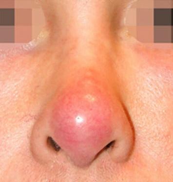 Mũi hư sau phẫu thuật có sửa được không? 2